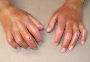 Best Homeopathic Doctor & Treatment for Scleroderma in India