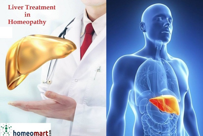 Homeopathic medicines for Fatty liver treatment, enlarged liver, Cirrhosis, Liver detoxification