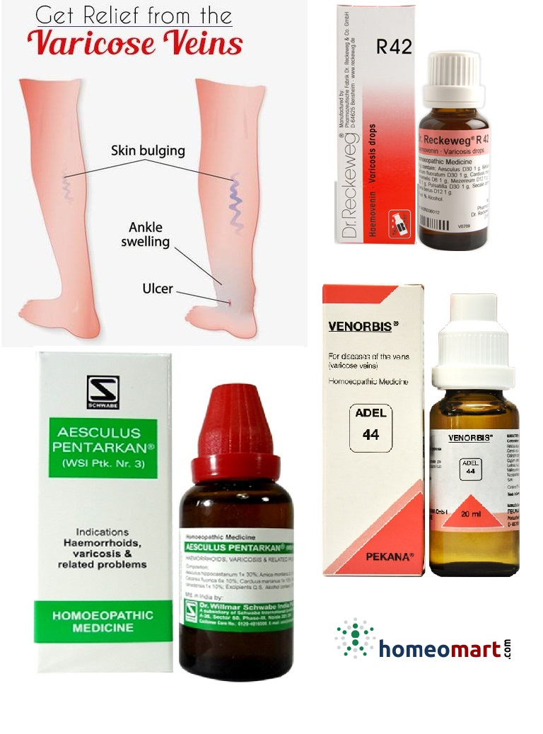 Top Homeopathic Medicines list for Varicose Veins  Buy Online