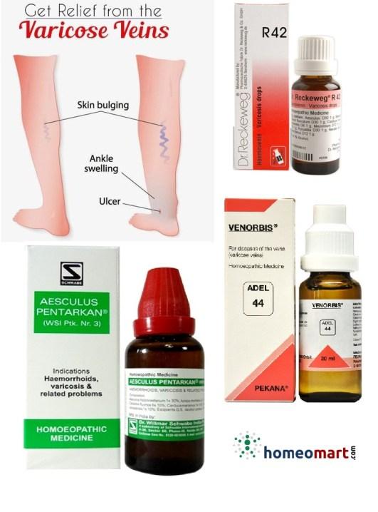 varicose veins medicine in homeopathy