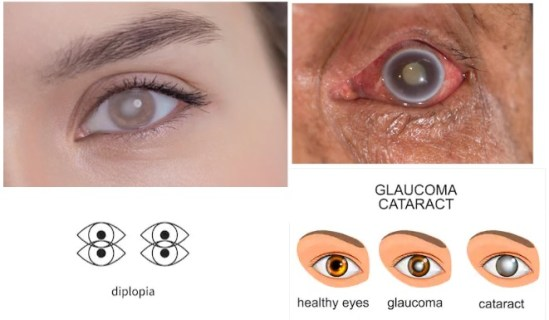 homeopathy-for-cataract-glaucoma-diplopia-vision-problems
