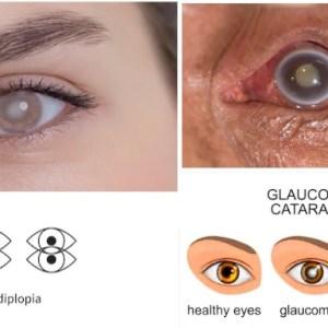 Cataract, Glaucoma