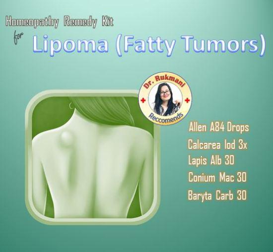 Homeopathic Lipoma Treatment Kit