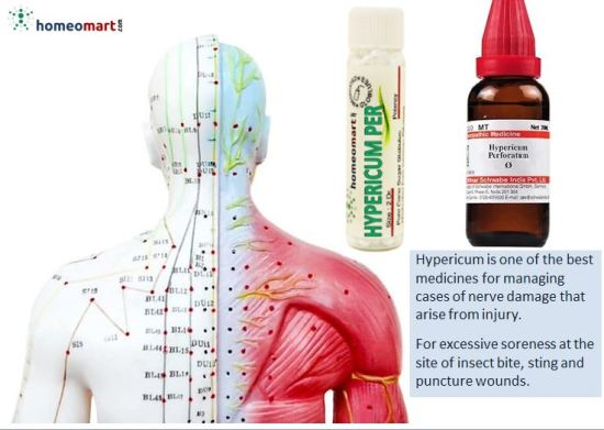 nerve pain homeopathic medicine, homeopathic cream for nerve injuries, nerve damage, hypericum perforatum