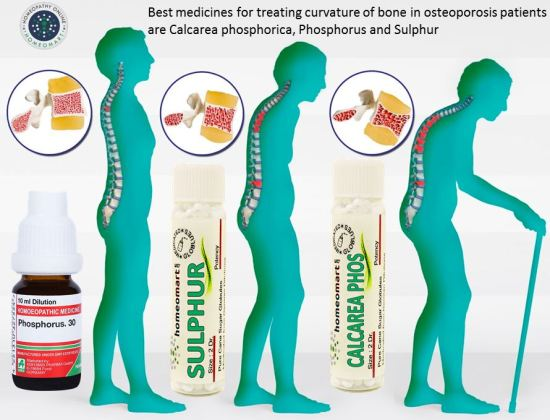 Picture of man bending forward due to osteoporosis, homeopathic medicine for calcium deficiency, best and safest treatment for osteoporosis