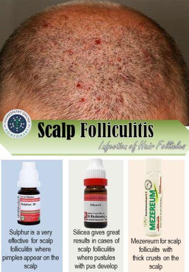 """scalp folliculitis pictures, hepar sulph folliculitis, thuja folliculitis, homeopathic medicine for acne,scalp folliculitis home treatment"""