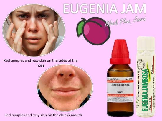 how to get rid of chin pimples overnight, hormonal chin acne, cystic acne on chin
