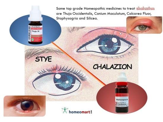 Cyst on eyelid treatment,Chalazion vs stye,Chalazion treatment medicines