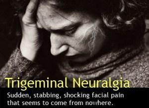 Homeopathy treatment trigeminal neuralgia Mumbai