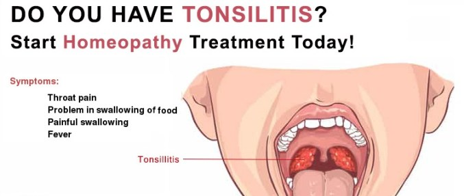 Homeopathy Medicine for Tonsillitis