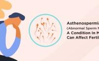 Electro Homeopathic Treatment of Asthenospermia