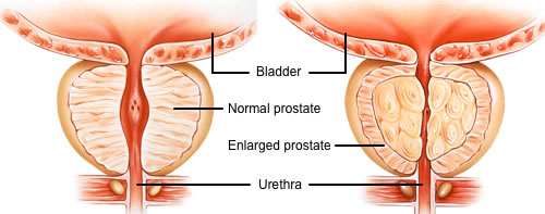 Electro Homeopathic Treatment of Prostate Enlargement