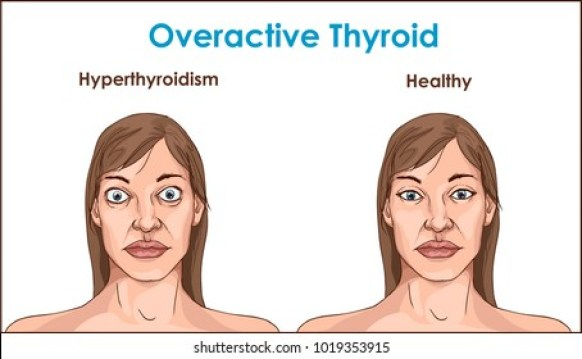 Electro Homeopathic Treatment of Hyperthyroidism