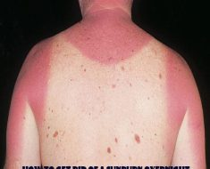 how to get rid of a sunburn overnight