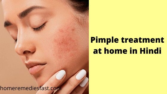 Pimple treatment at home in Hindi