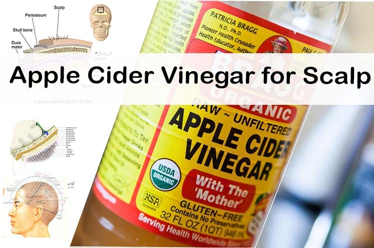 Apple Cider For Scalp Effective Uses And Remedies 2019