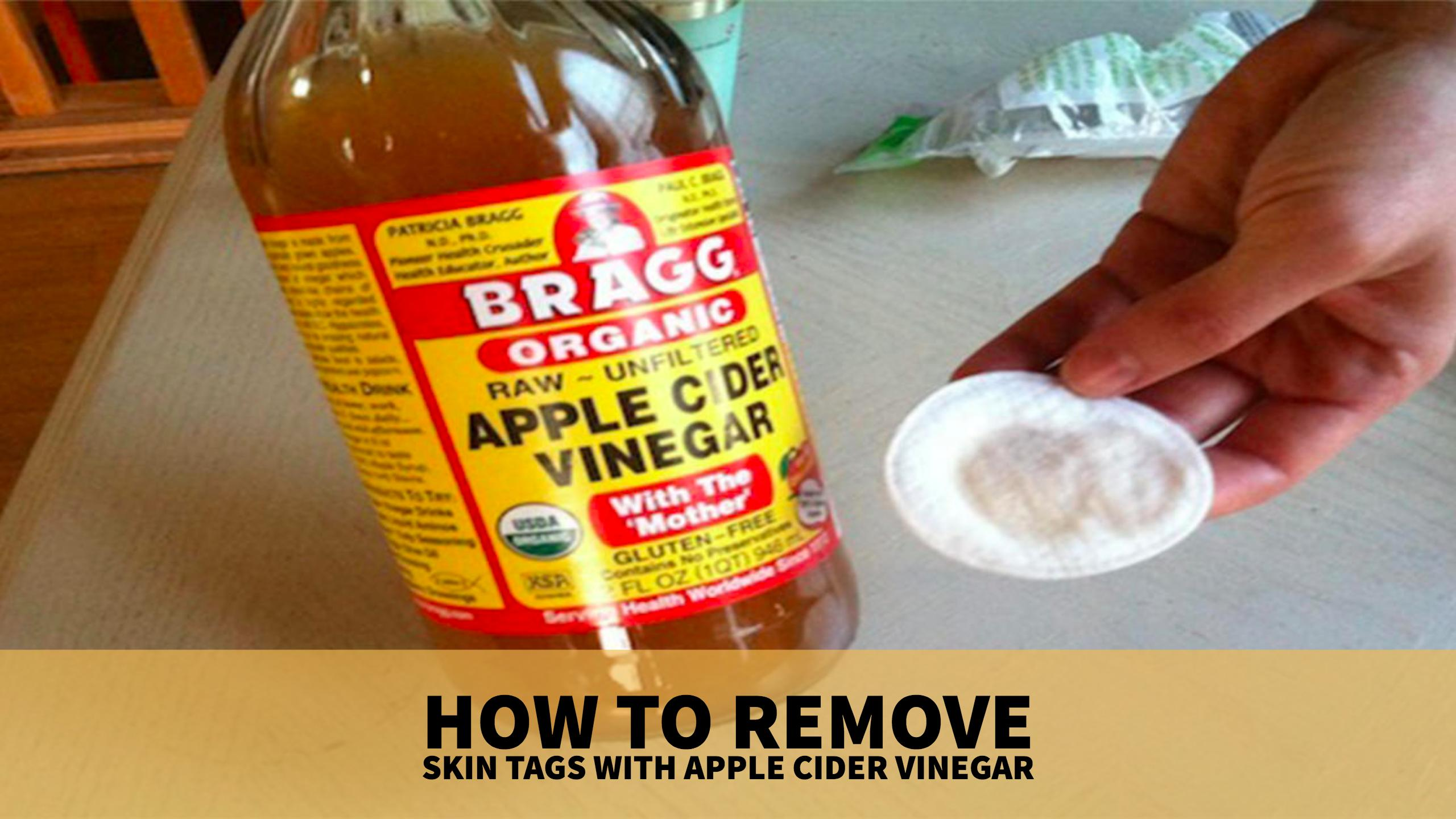 How to Remove Skin Tags with Apple Cider Vinegar
