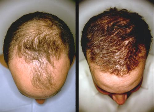 Hair Growth Stimulation Results On Man Before And After