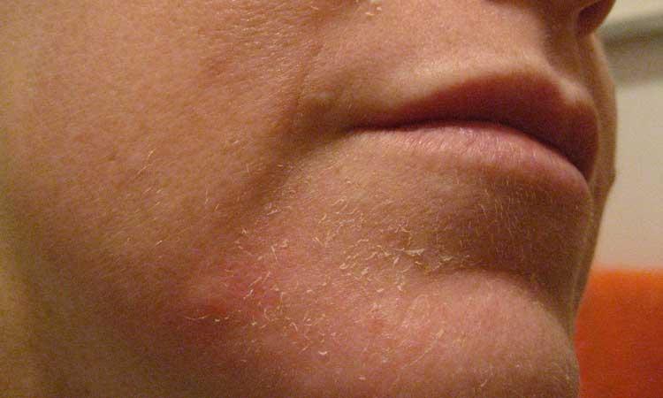 26 Home Remedies for Peeling Skin - Home Remedies - Natural & Herbal ...