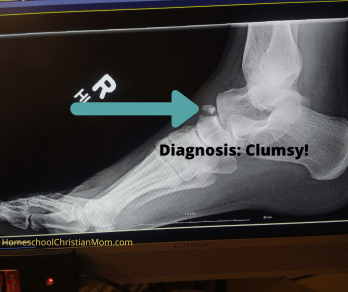 X ray of of my  broken right foot. The text says, Diagnosis: Clumsy!