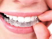 How to Clean Invisalign Aligner - [2018 Rules to Follow]