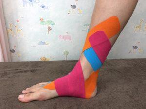 有 痛 性 外 脛骨 テーピング やり方 有痛性外脛骨のテーピング - tamaruya