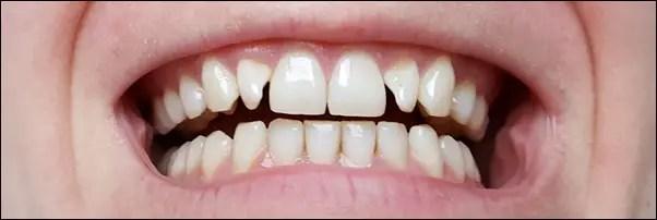 Zahnaufhellung zu Hause - Zähne bleichen mit PEARL Guard Dental Whitening Strips Zahnaufheller Tag 14