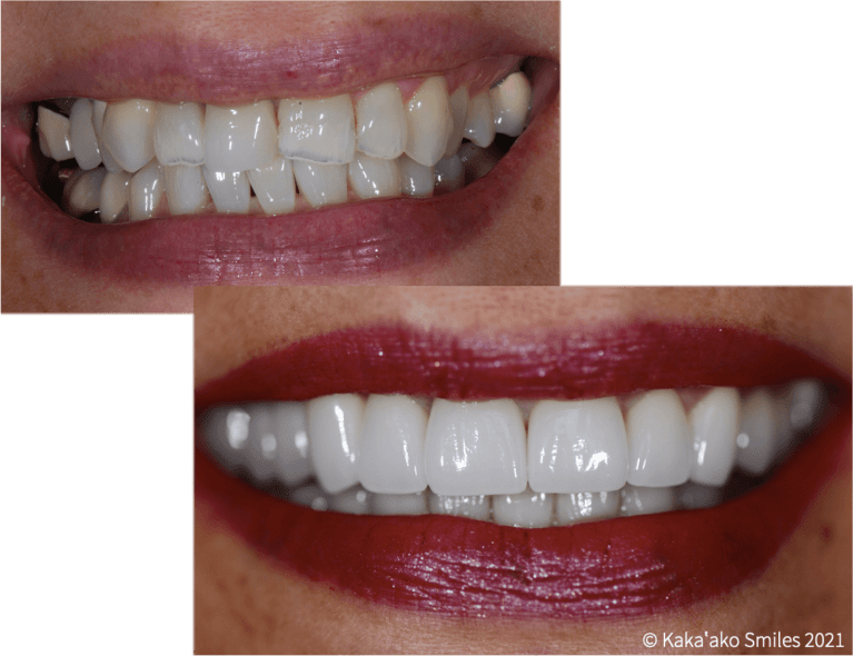 Kaka'ako Smiles before and after case showing full-mouth oral rehabilitation with porcelain veneers and crowns