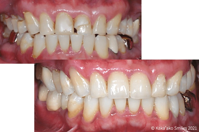 Kaka'ako Smiles before and after case restored with crowns and composite restorations