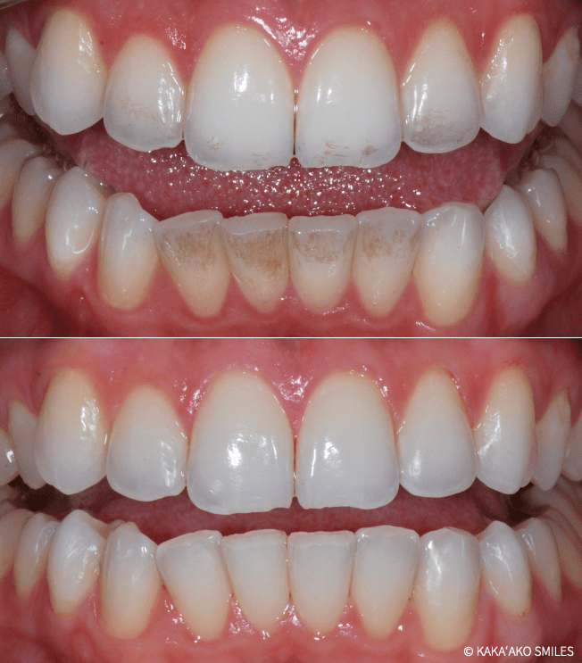 Kaka'ako Smiles before and after professional dental cleaning