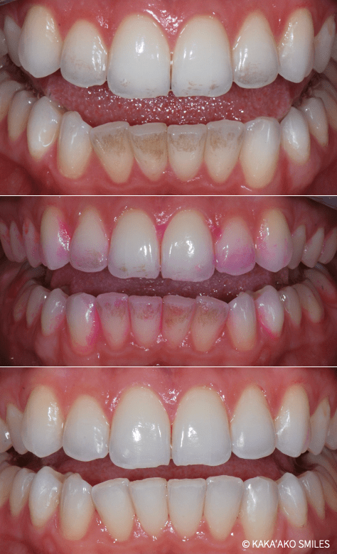 Professional Dental Cleaning with Airflow Polisher at Kaka'ako Smiles
