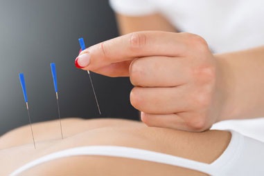 Acupuncture at Hood To Coast Healthcare