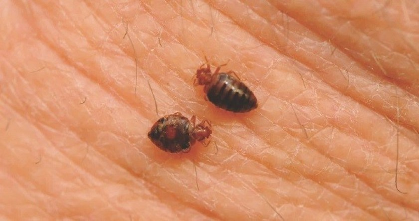 best anti-itch cream for bug bites