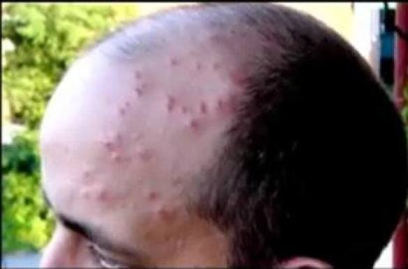 bed-bug-picture-bite-head