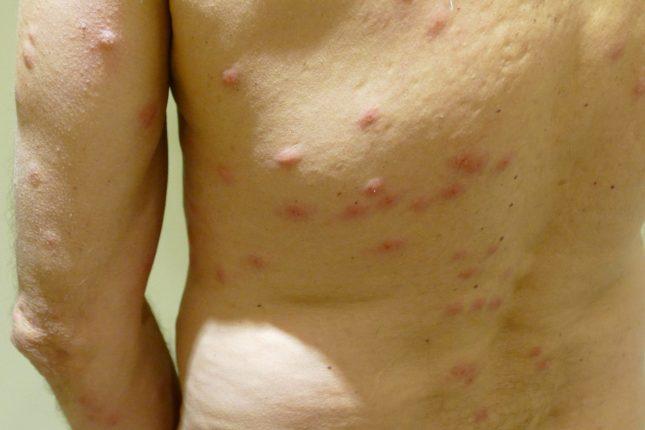 different-bed bug-bites