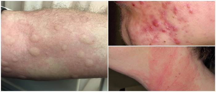 Red Itchy Spots Skin