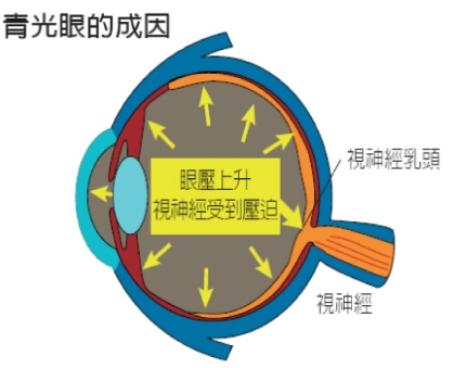 青光眼治療方式 | Ho Optometrist