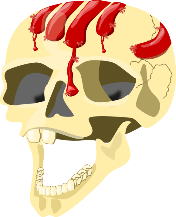 A skull covered in blood - filled with haemoglobin