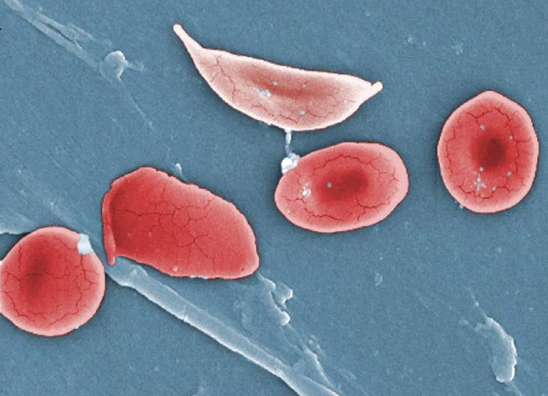In sickle cell disease, the red blood cells are misshapen and don't carry oxygen well. Image credit - OpenStax College licensed under CC BY 3.0