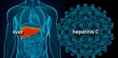 منظمة الصحة تحث على مواجهة التهاب الكبد الوبائي