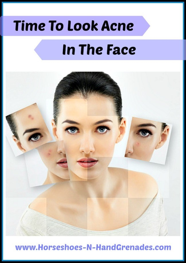 Acne-Solutions