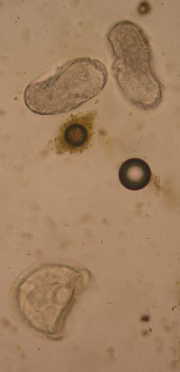 Two strongyle-type eggs, at top, with a D-shaped tapeworm egg (Anoplocephala perfoliata).