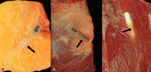 Photographs illustrating: (a) an un-coated transponder surrounded by thin pale grey tissue-capsule within the subcutaneous fat of a 14-year old Friesian gelding (arrow); (b) an un-coated transponder surrounded by a thin pale grey tissue-capsule in the perimuscular tissue of a 9-year old Trotter gelding (arrow); and (c) coated transponder surrounded by a grey, translucent tissue capsule in the musculature of a 6-year old Tinker gelding (arrow). The dimensions of these transponders are 11.4 x 0.22 mm.
