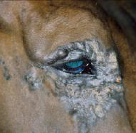 This aggressive malignant periocular sarcoid was treated with iridium 192 interstial brachytherapy. The outcome, below, was exceptionally good but it took over 12 months to reach the state shown and there were some side effects on the cornea and lens. These were, however, trivial to the horse and he was able to compete to the highest possible level.