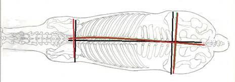 spine-bend