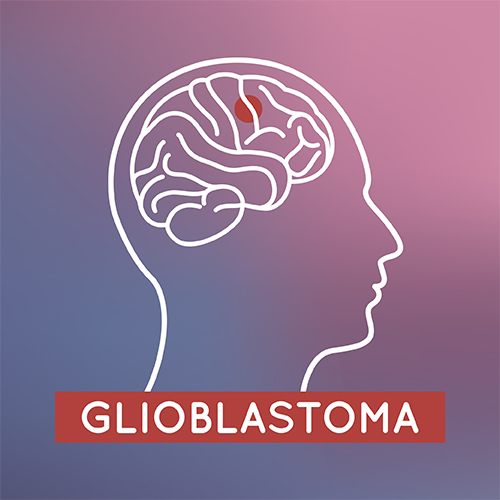 Searching for better glioblastoma treatment options and outcomes
