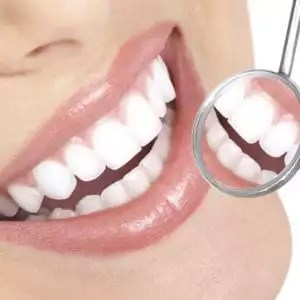 Caring For Your Smiles After Braces