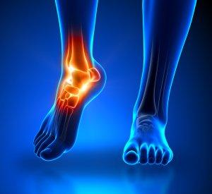 Woodlands Achilles Tendonitis, achilles pain, pain in the achilles, achilles, ankle pain, pain in the ankle, ankle