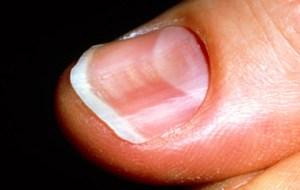 Spoon Shaped Nails