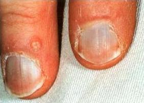 argyria silver salts nails